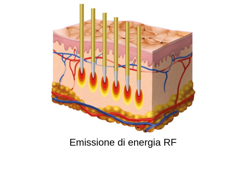 percutanea-rf2