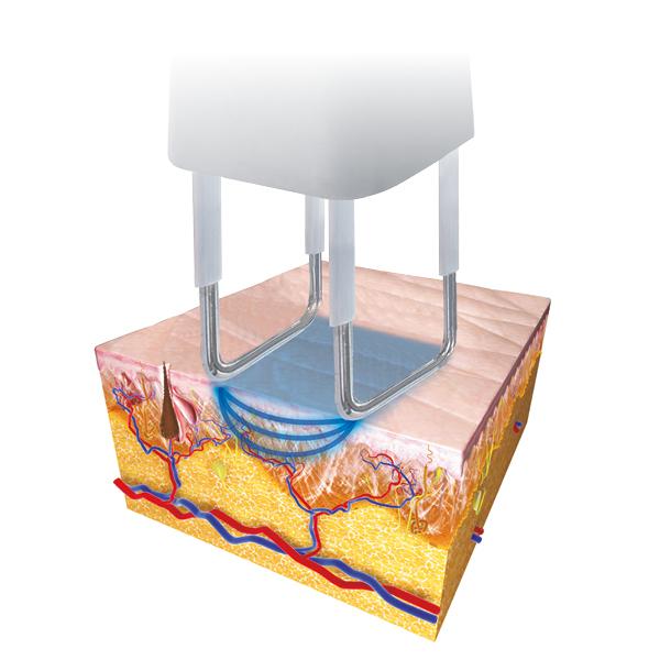 Radiofrequenza Smartxide2 DOT RF
